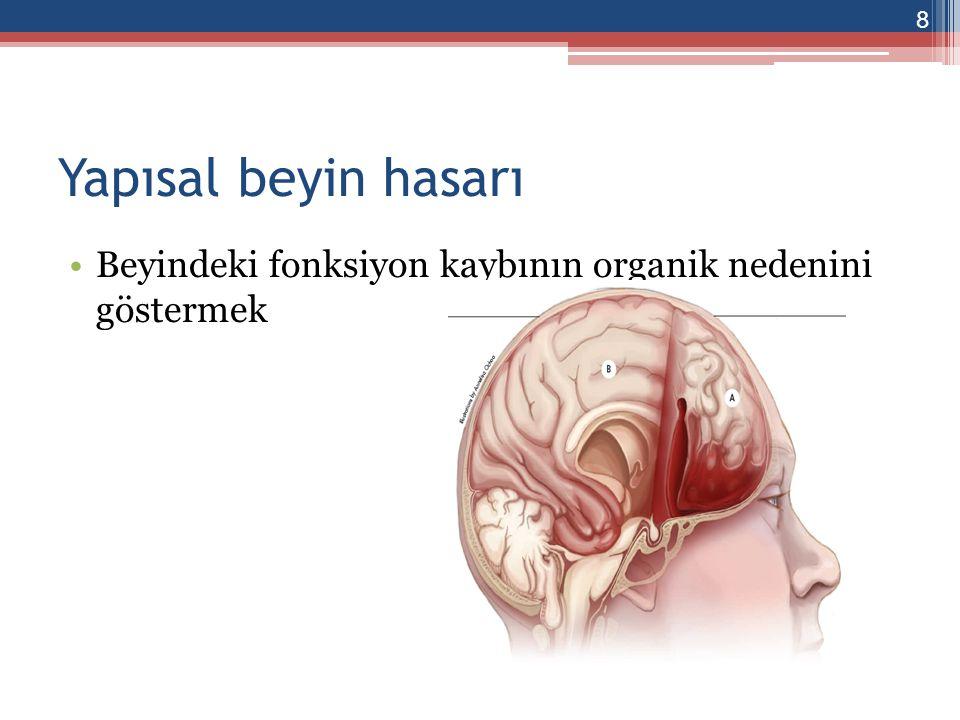 Yapısal beyin hasarı Beyindeki fonksiyon kaybının organik nedenini göstermek
