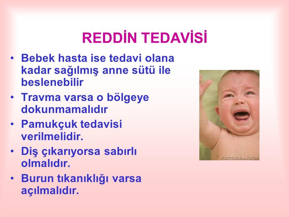 REDDİN TEDAVİSİ Bebek hasta ise tedavi olana kadar sağılmış anne sütü ile beslenebilir. Travma varsa o bölgeye dokunmamalıdır.