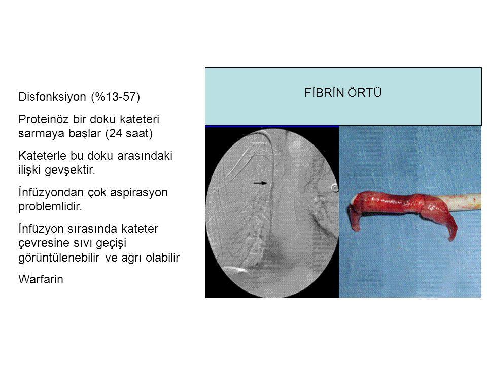 Proteinöz bir doku kateteri sarmaya başlar (24 saat)