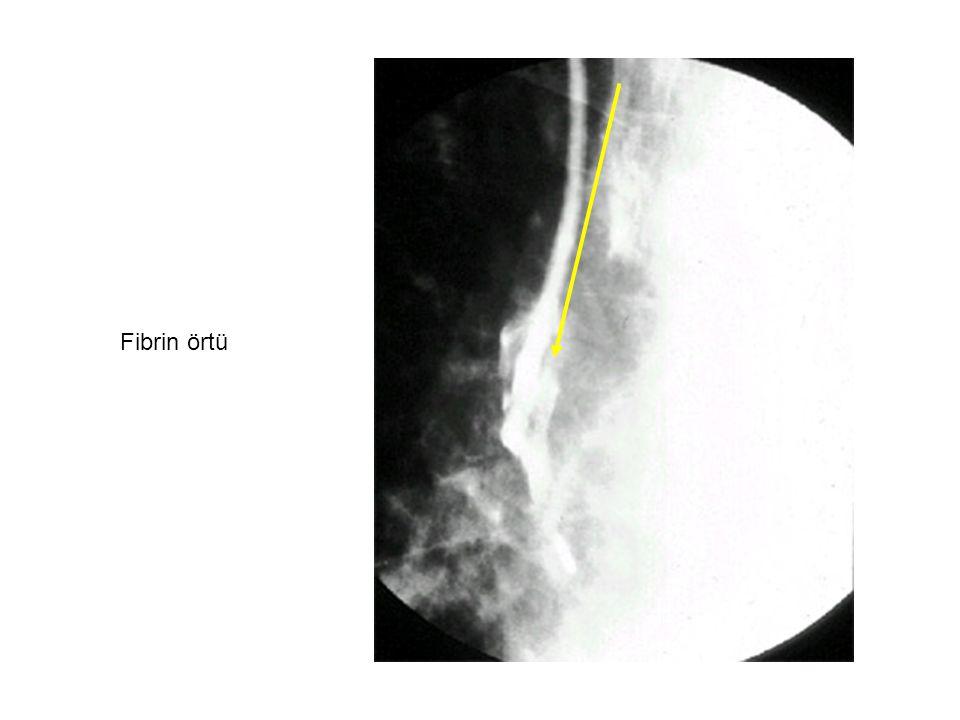Fibrin örtü