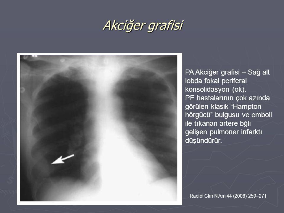 Akciğer grafisi PA Akciğer grafisi – Sağ alt lobda fokal periferal konsolidasyon (ok).