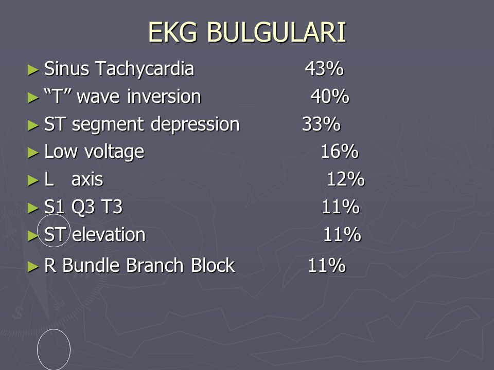 EKG BULGULARI Sinus Tachycardia 43% T wave inversion 40%