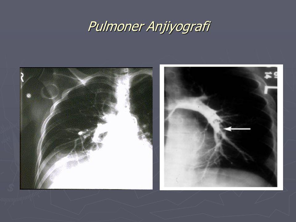 Pulmoner Anjiyografi