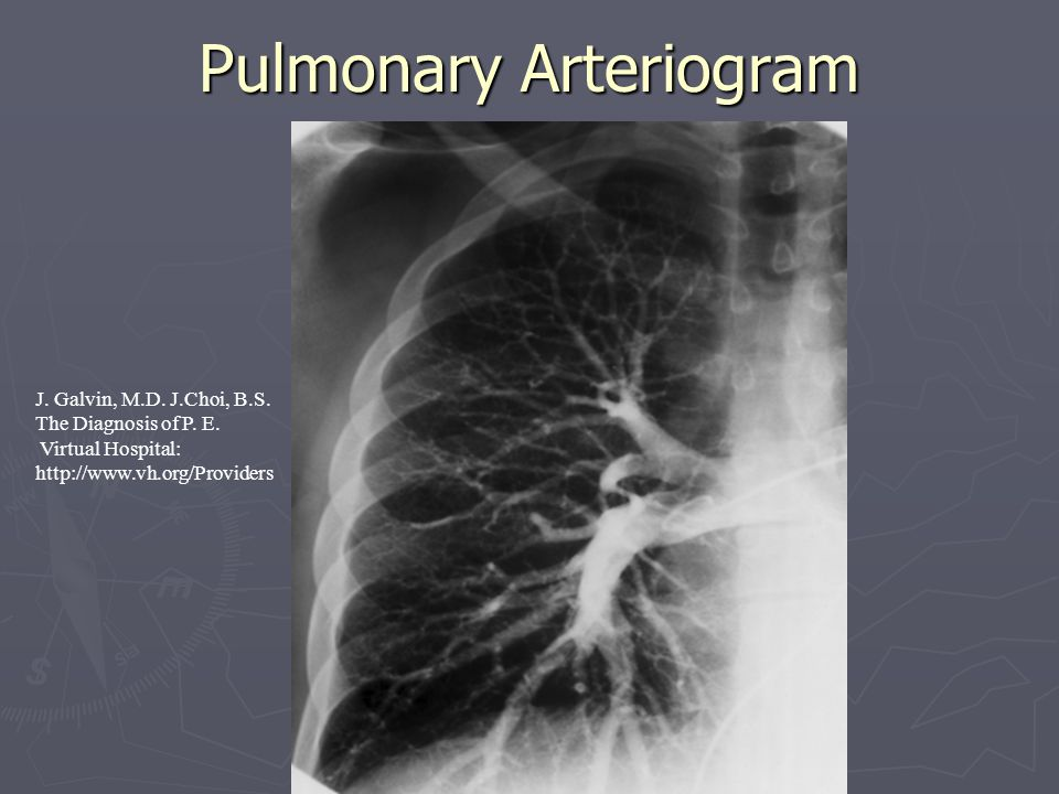 Pulmonary Arteriogram