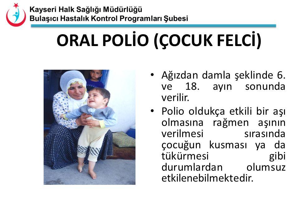 ORAL POLİO (ÇOCUK FELCİ)