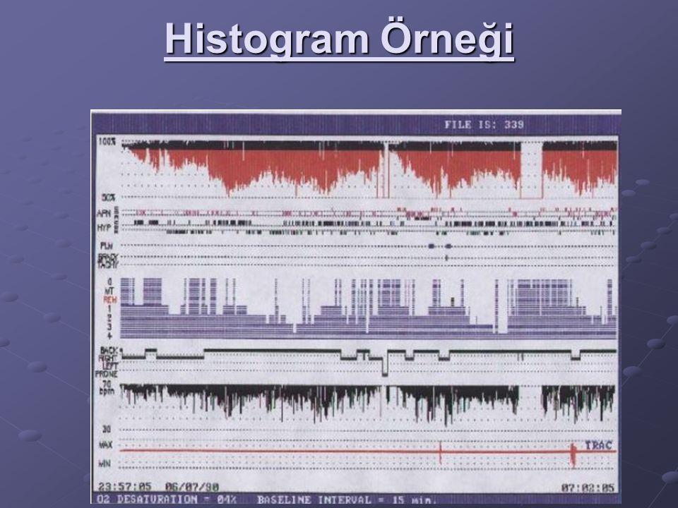 Histogram Örneği