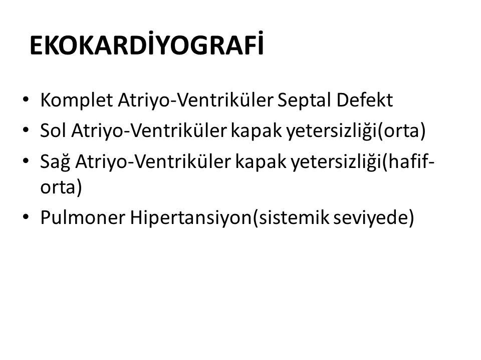 EKOKARDİYOGRAFİ Komplet Atriyo-Ventriküler Septal Defekt