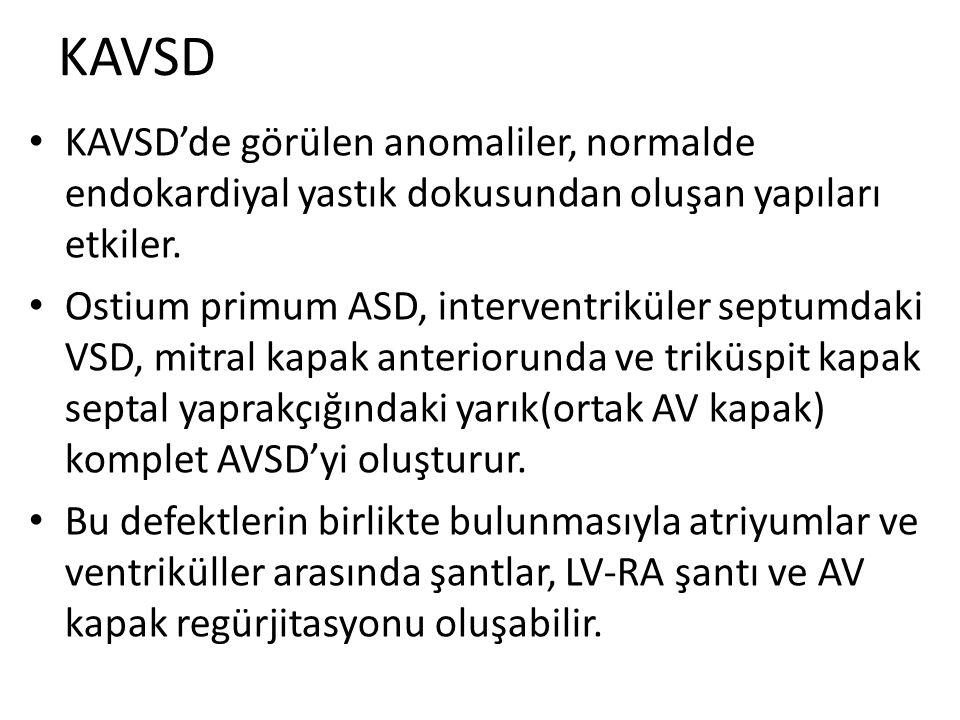 KAVSD KAVSD'de görülen anomaliler, normalde endokardiyal yastık dokusundan oluşan yapıları etkiler.