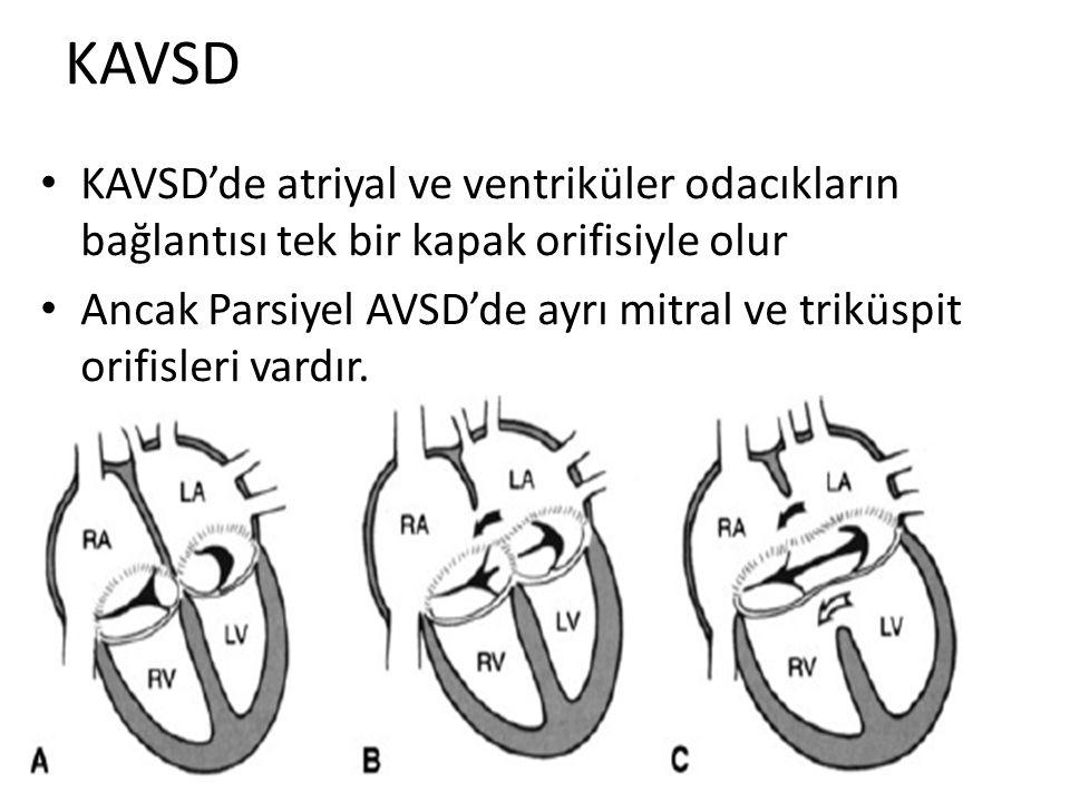 KAVSD KAVSD'de atriyal ve ventriküler odacıkların bağlantısı tek bir kapak orifisiyle olur.