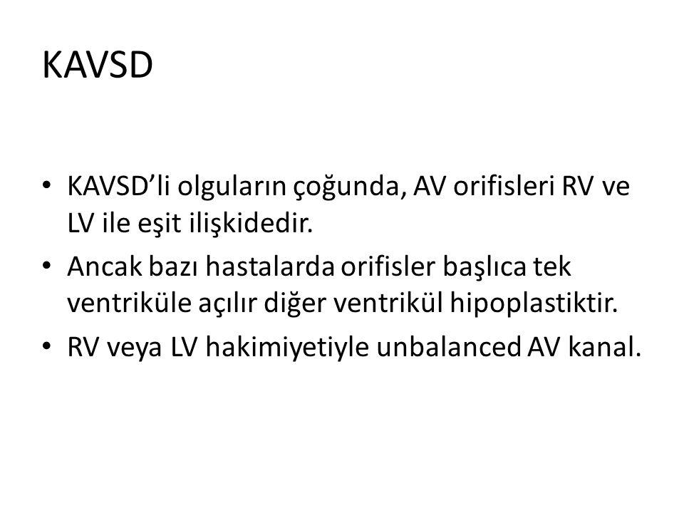 KAVSD KAVSD'li olguların çoğunda, AV orifisleri RV ve LV ile eşit ilişkidedir.