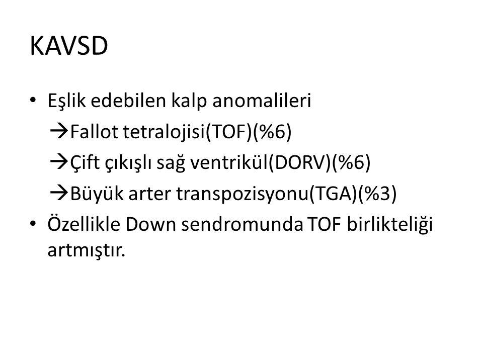 KAVSD Eşlik edebilen kalp anomalileri Fallot tetralojisi(TOF)(%6)