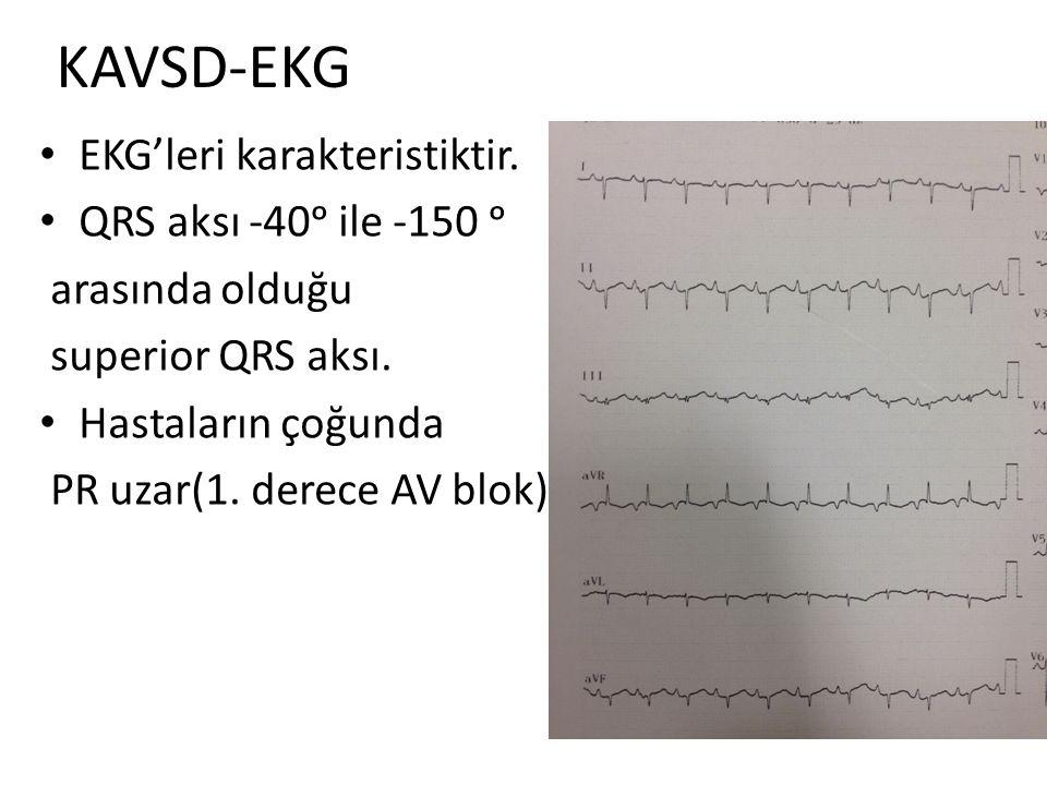KAVSD-EKG EKG'leri karakteristiktir. QRS aksı -40ᵒ ile -150 ᵒ