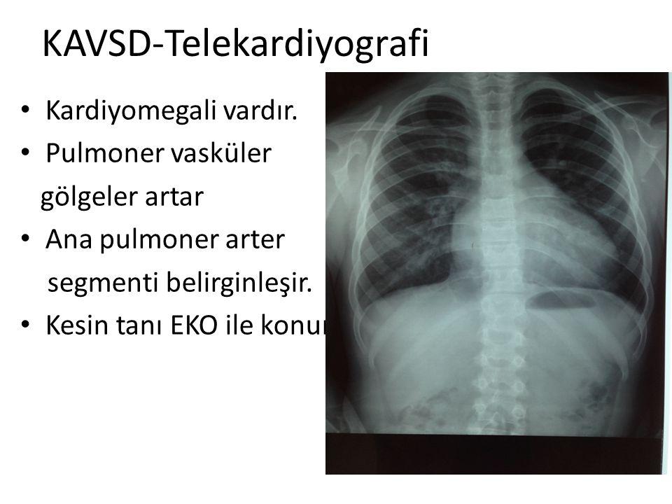 KAVSD-Telekardiyografi