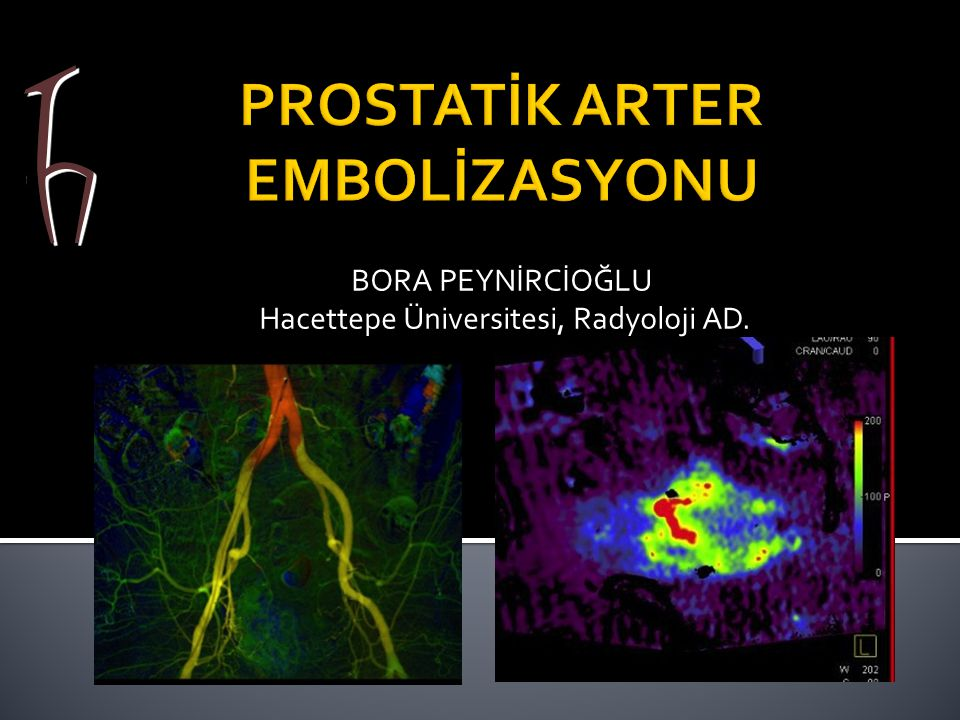 PROSTATİK ARTER EMBOLİZASYONU