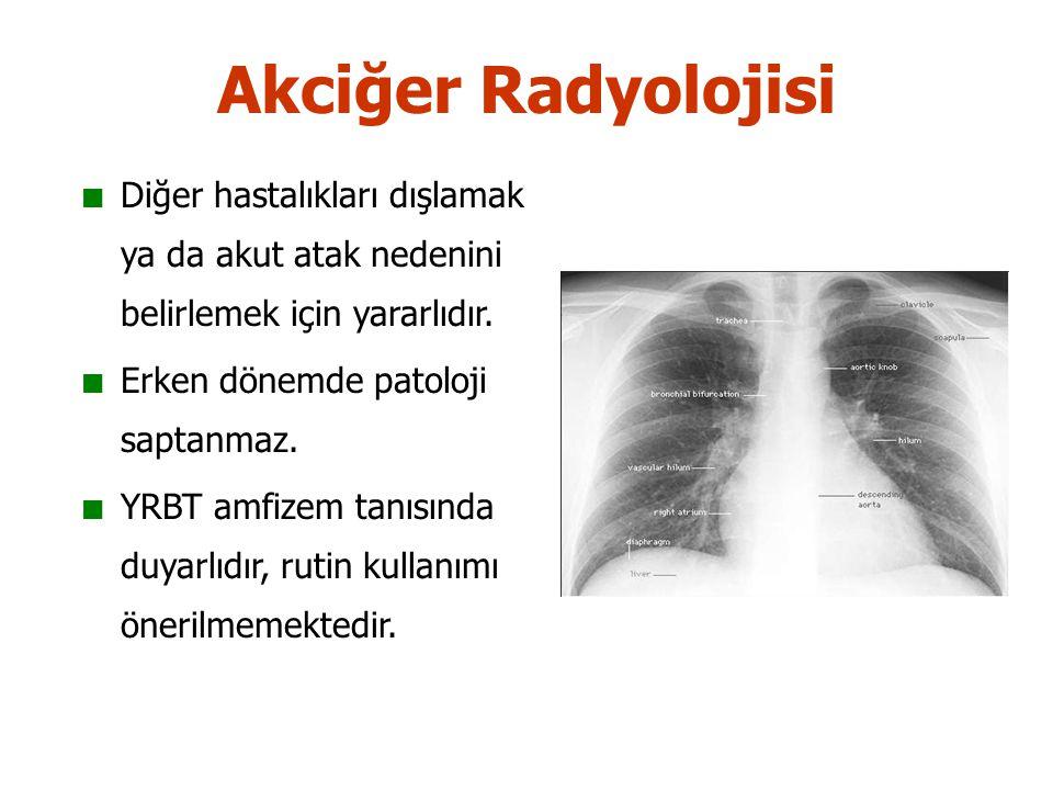 Akciğer Radyolojisi Diğer hastalıkları dışlamak ya da akut atak nedenini belirlemek için yararlıdır.