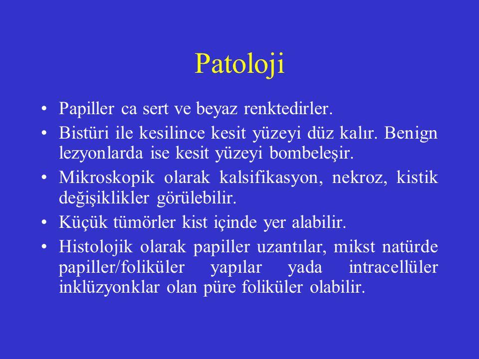 Patoloji Papiller ca sert ve beyaz renktedirler.