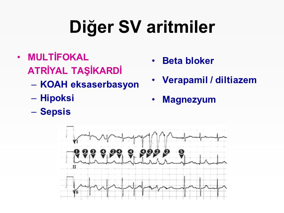 Diğer SV aritmiler MULTİFOKAL ATRİYAL TAŞİKARDİ KOAH eksaserbasyon