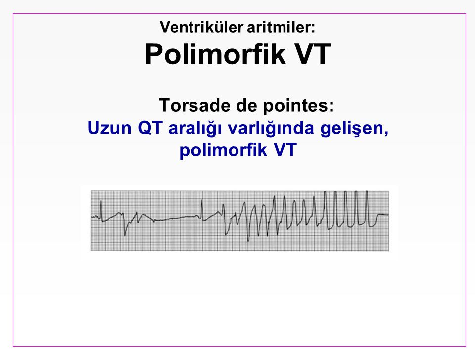 Ventriküler aritmiler: Polimorfik VT