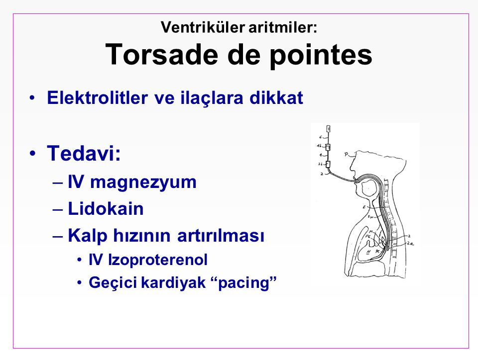 Ventriküler aritmiler: Torsade de pointes