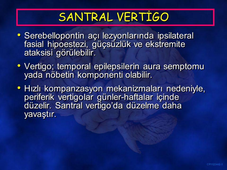 SANTRAL VERTİGO Serebellopontin açı lezyonlarında ipsilateral fasial hipoestezi, güçsüzlük ve ekstremite ataksisi görülebilir.