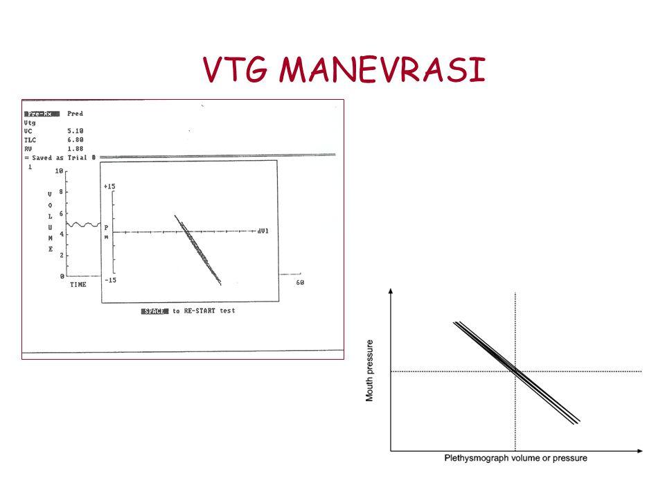 VTG MANEVRASI