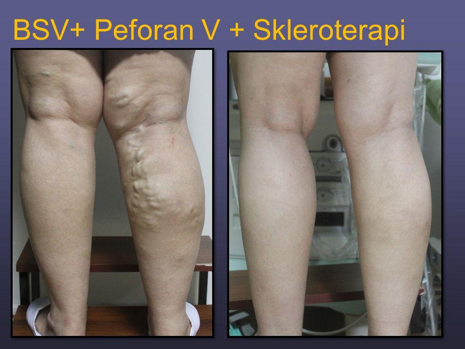 BSV+ Peforan V + Skleroterapi