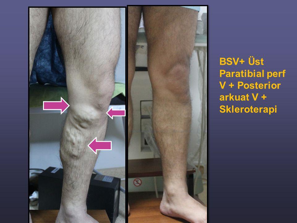 BSV+ Üst Paratibial perf V + Posterior arkuat V + Skleroterapi