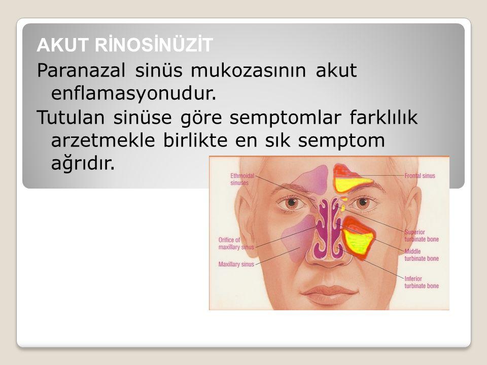 AKUT RİNOSİNÜZİT Paranazal sinüs mukozasının akut enflamasyonudur