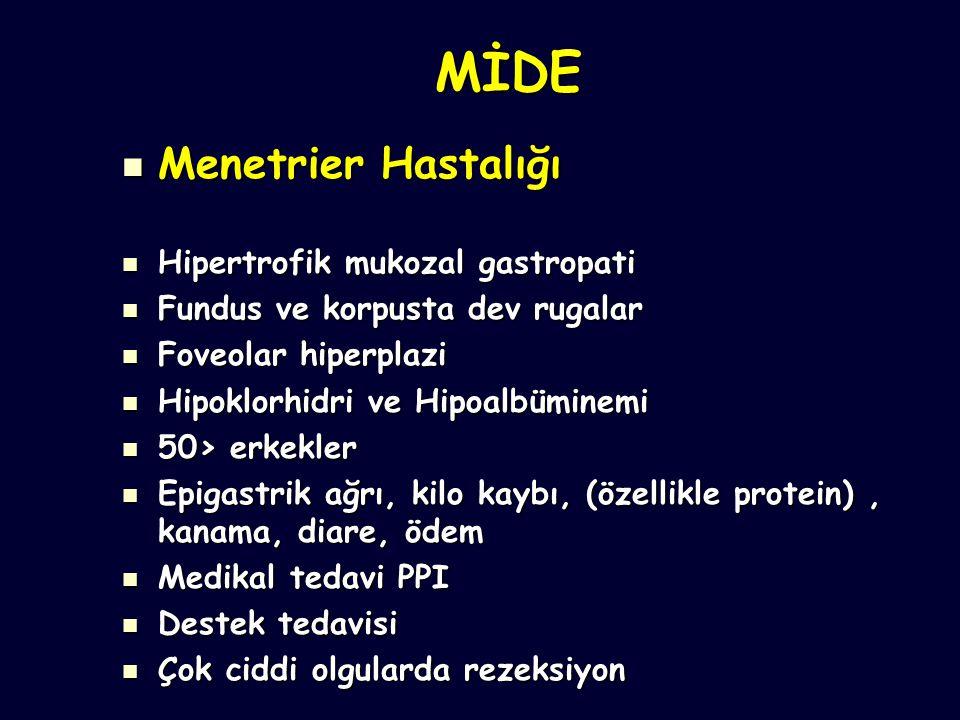MİDE Menetrier Hastalığı Hipertrofik mukozal gastropati