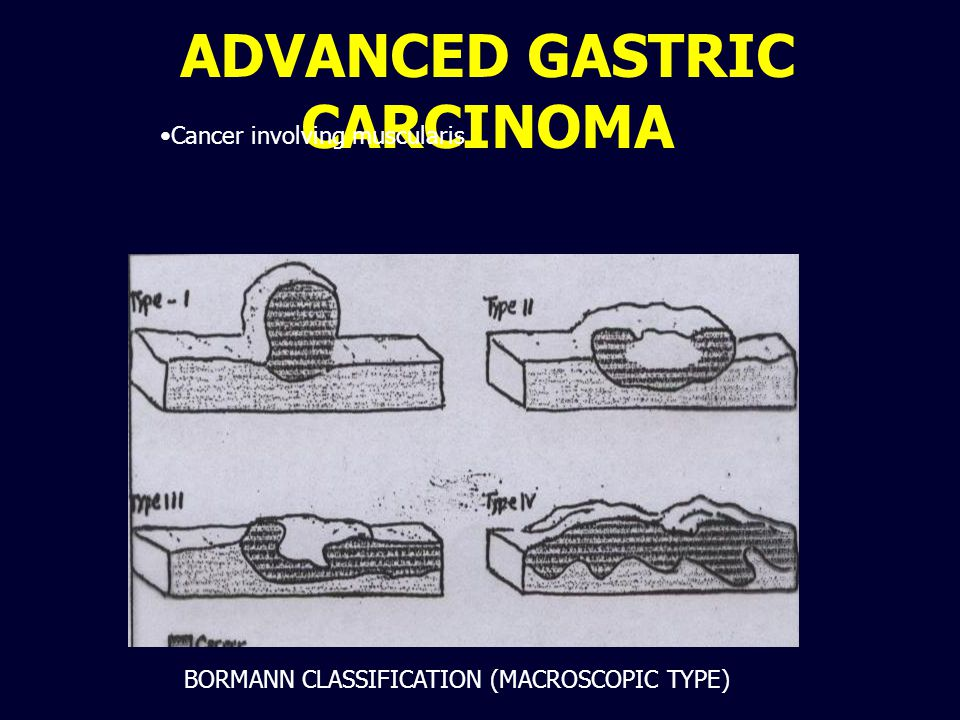ADVANCED GASTRIC CARCINOMA