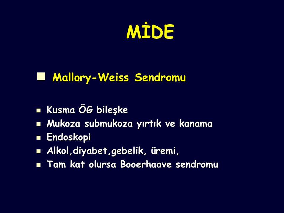 Mallory-Weiss Sendromu