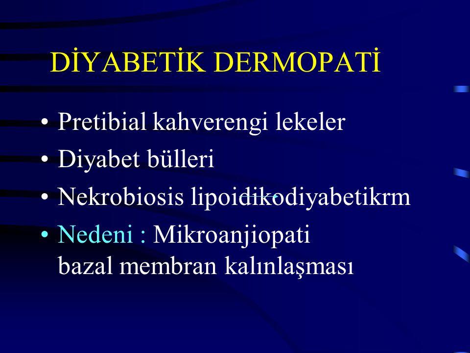 DİYABETİK DERMOPATİ Pretibial kahverengi lekeler Diyabet bülleri