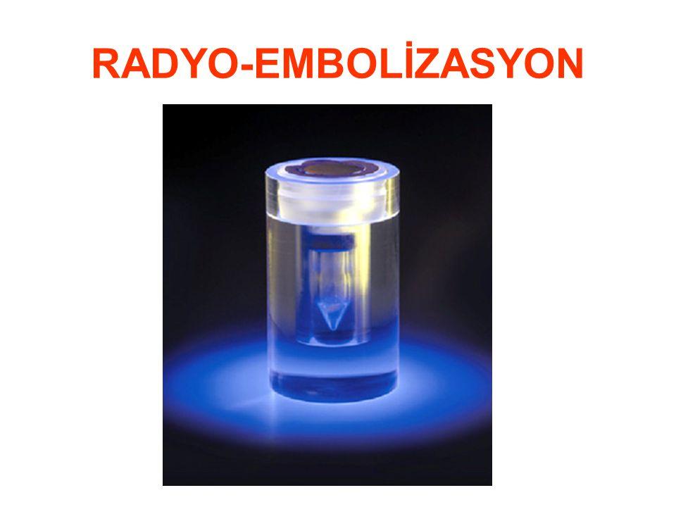 RADYO-EMBOLİZASYON
