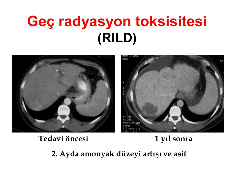 Geç radyasyon toksisitesi (RILD)