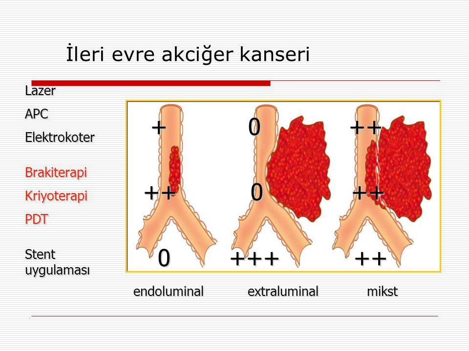 + 0 ++ ++ 0 ++ 0 +++ ++ İleri evre akciğer kanseri Lazer APC