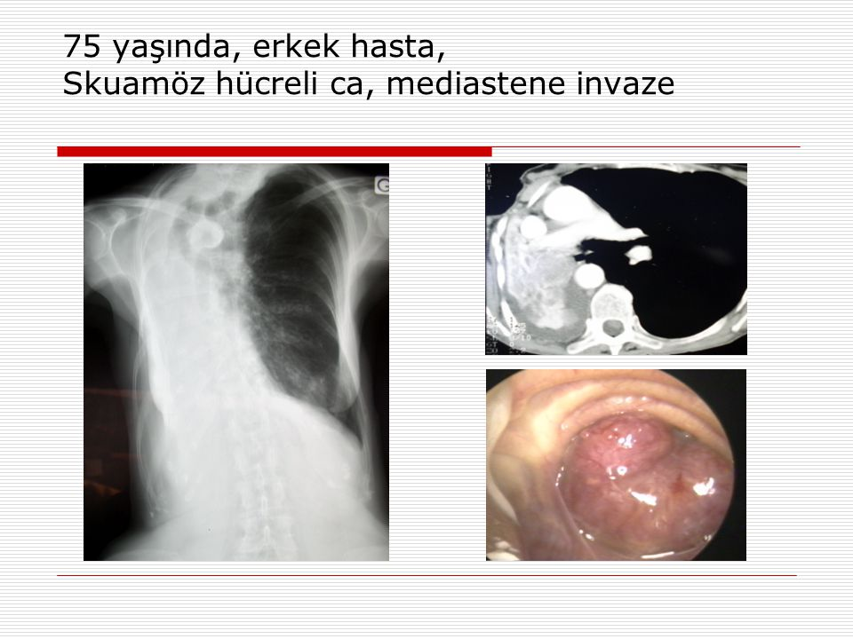 75 yaşında, erkek hasta, Skuamöz hücreli ca, mediastene invaze