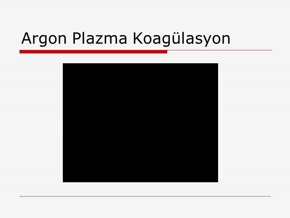 Argon Plazma Koagülasyon