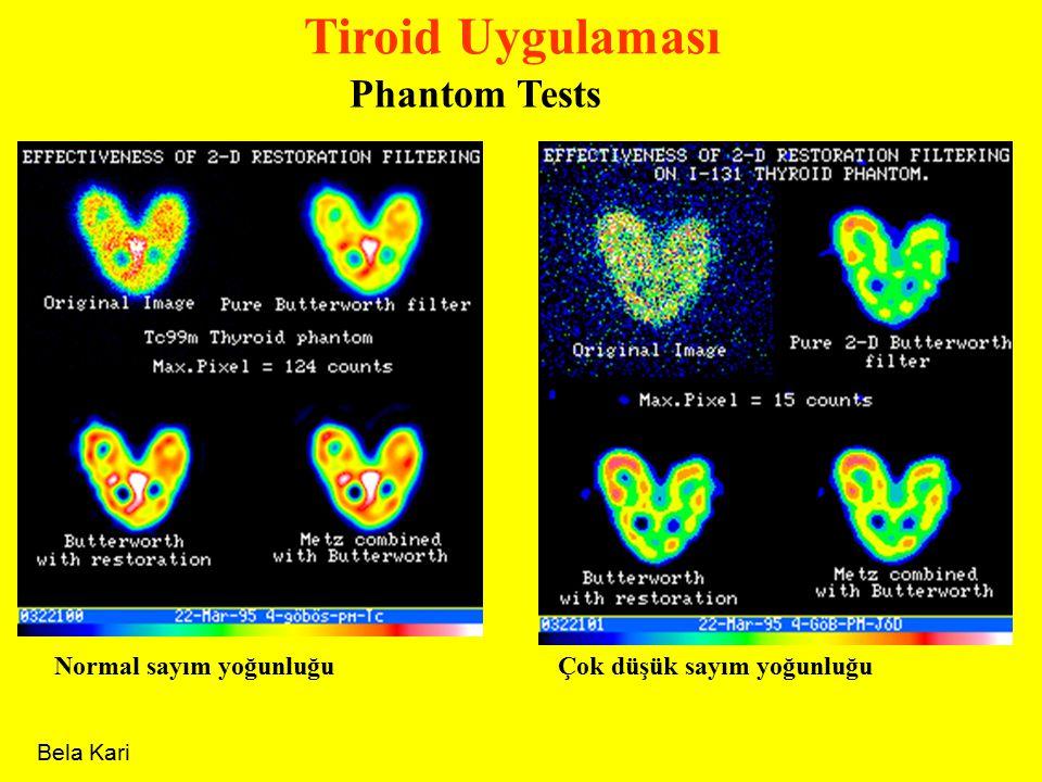 Tiroid Uygulaması Phantom Tests Normal sayım yoğunluğu