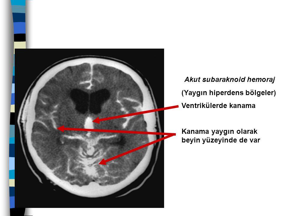 Akut subaraknoid hemoraj