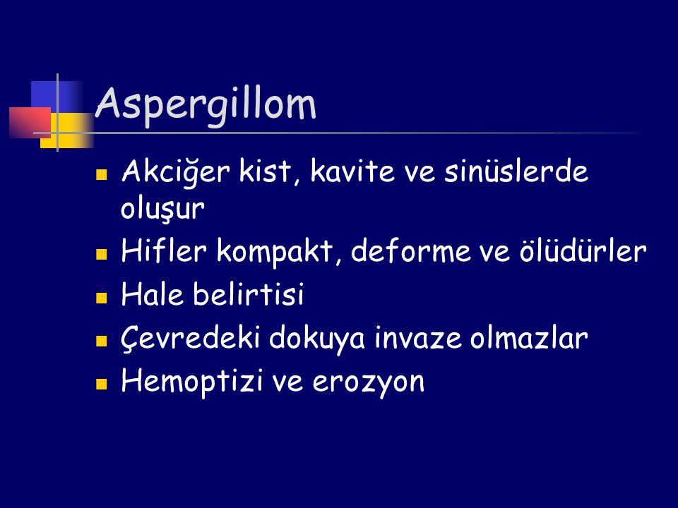 Aspergillom Akciğer kist, kavite ve sinüslerde oluşur