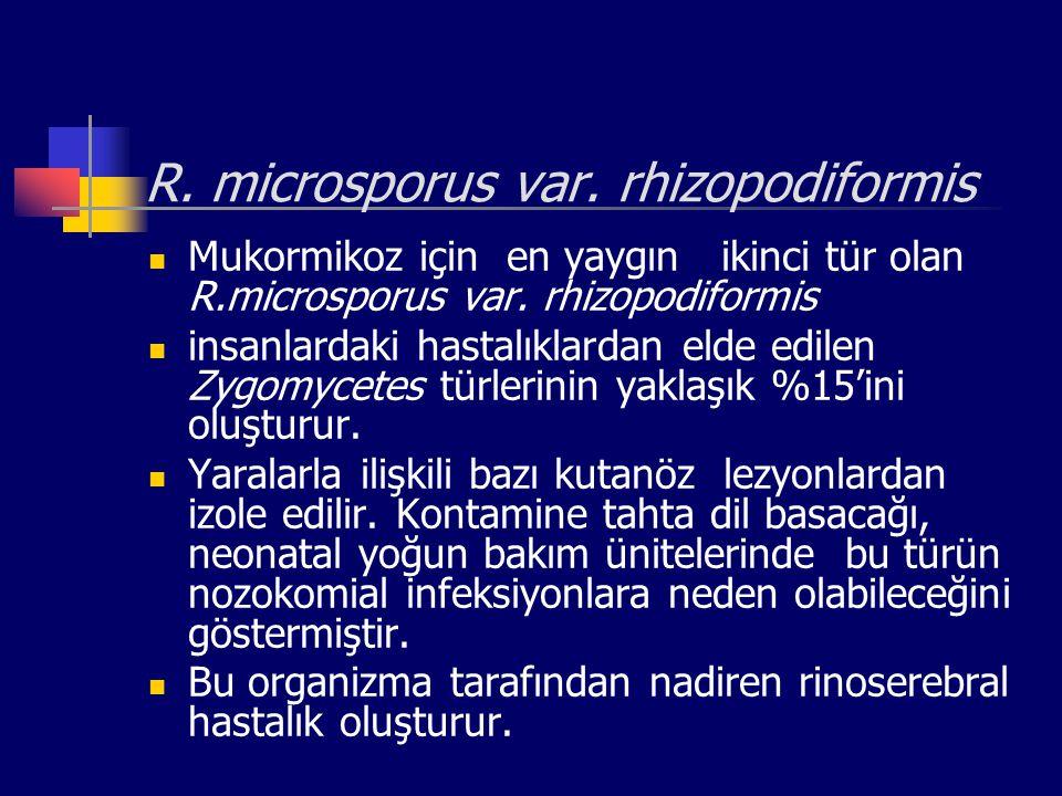 R. microsporus var. rhizopodiformis