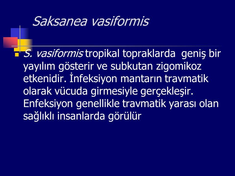 Saksanea vasiformis