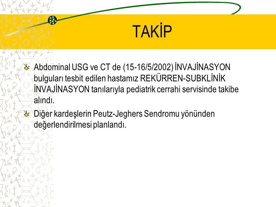 TAKİP