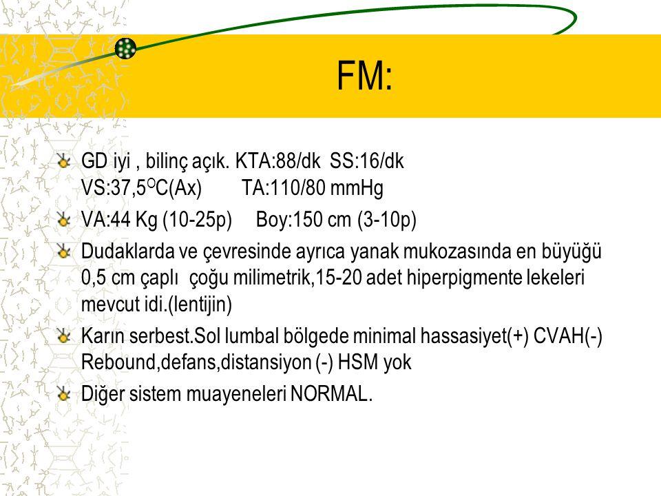FM: GD iyi , bilinç açık. KTA:88/dk SS:16/dk VS:37,5OC(Ax) TA:110/80 mmHg. VA:44 Kg (10-25p) Boy:150 cm (3-10p)