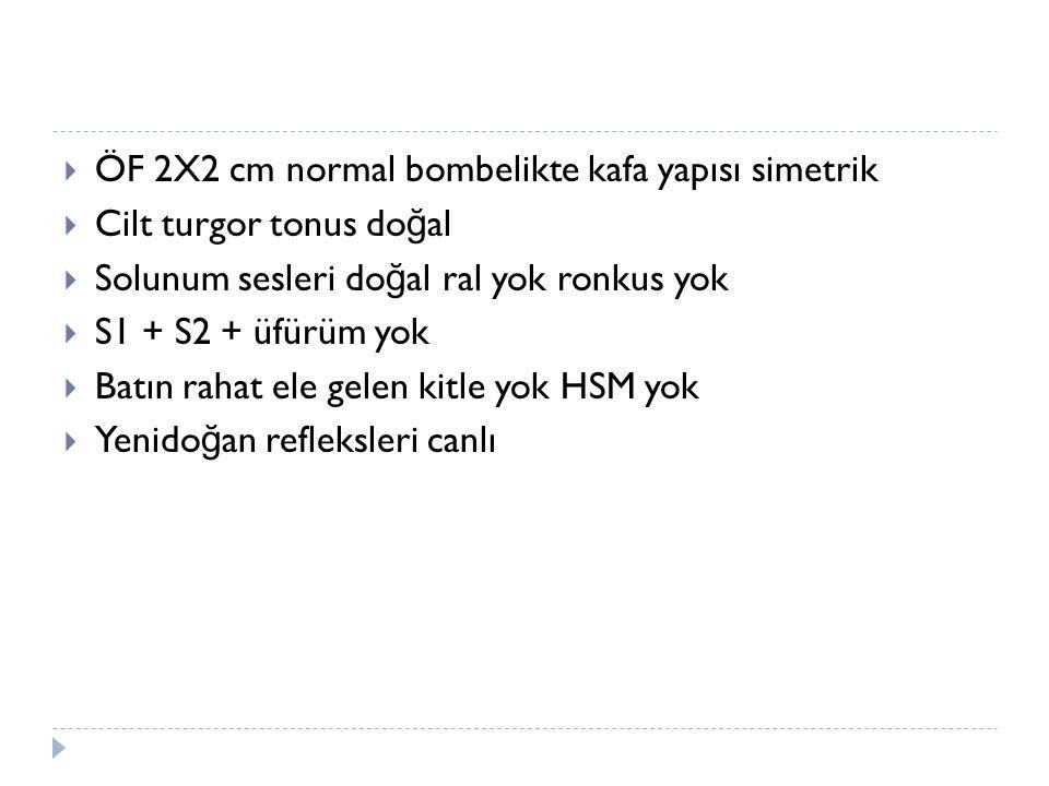 ÖF 2X2 cm normal bombelikte kafa yapısı simetrik