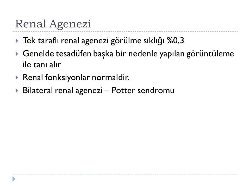 Renal Agenezi Tek taraflı renal agenezi görülme sıklığı %0,3