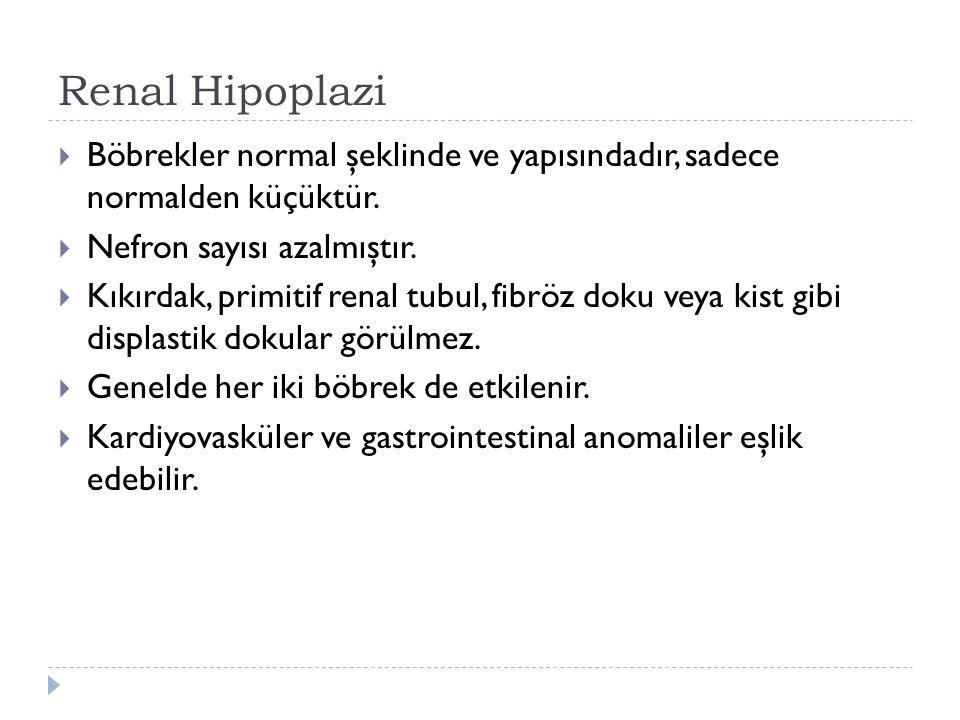 Renal Hipoplazi Böbrekler normal şeklinde ve yapısındadır, sadece normalden küçüktür. Nefron sayısı azalmıştır.