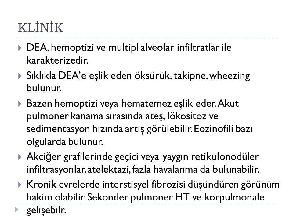 KLİNİK DEA, hemoptizi ve multipl alveolar infiltratlar ile karakterizedir. Sıklıkla DEA'e eşlik eden öksürük, takipne, wheezing bulunur.