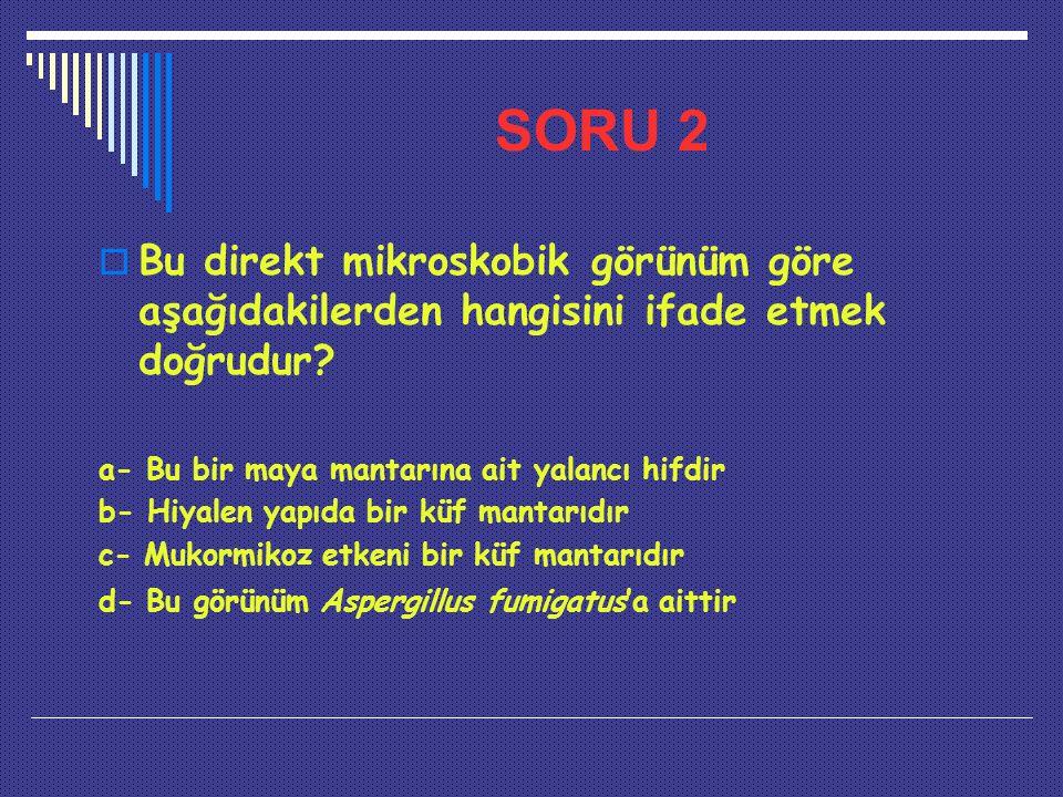 SORU 2 Bu direkt mikroskobik görünüm göre aşağıdakilerden hangisini ifade etmek doğrudur a- Bu bir maya mantarına ait yalancı hifdir.