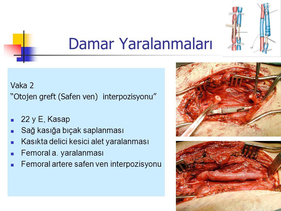 Damar Yaralanmaları Vaka 2 Otojen greft (Safen ven) interpozisyonu